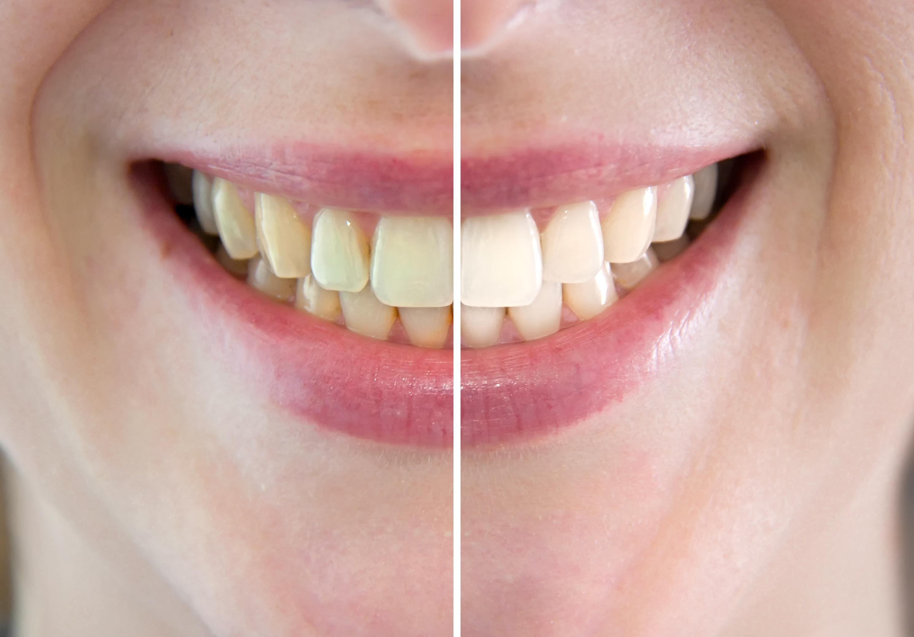 dentition - dents - différence
